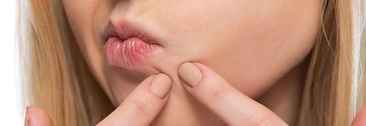 cura acne